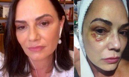 """Luiza Brunet diz que sofreu recriminação ao denunciar ex: """"Fui muito julgada"""""""