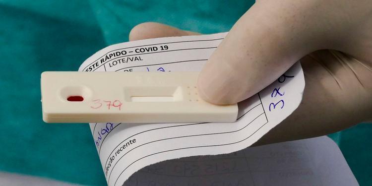 Testes no Remo: Novo caso de covid-19 é confirmado; mais de 20 profissionais tiveram a doença