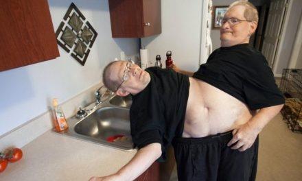 Gêmeos siameses mais velhos do mundo morrem aos 68 anos nos EUA