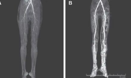 Com queimação nas pernas, indiana de 24 anos descobre doença medieval