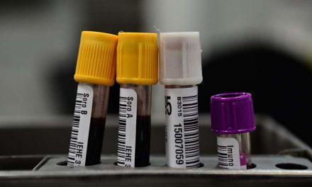 Tipo sanguíneo A pode ser mais suscetível à forma grave da covid-19, diz estudo