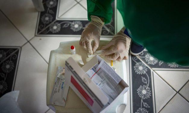 Funcionários de laboratórios apontam indícios de manipulação na divulgação de casos de Covid-19 no Pará