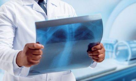 Covid-19: exame pioneiro mostra danos em pulmões 3 meses depois de infecção por coronavírus