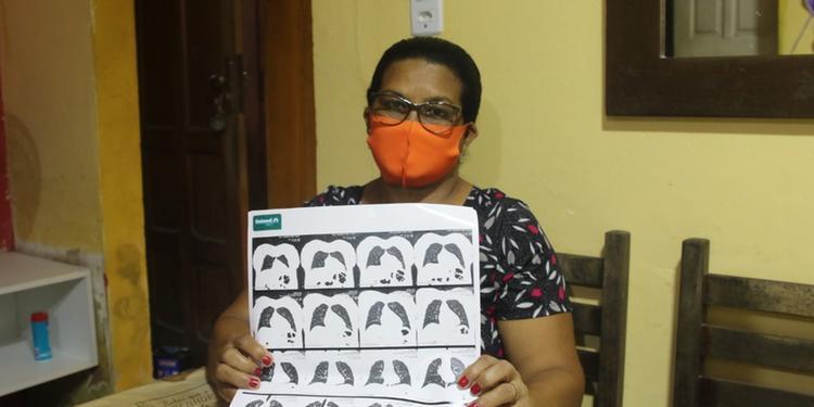 Mais de 80% dos infectados por covid-19 no Pará são pretos ou pardos