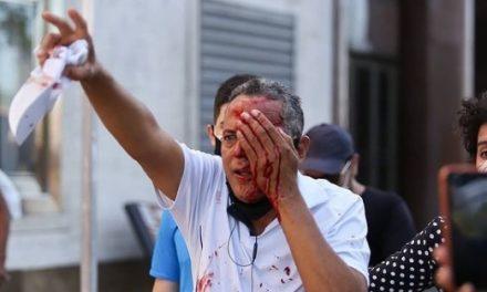 Bala de borracha: Homem não estava em protesto e perde olho