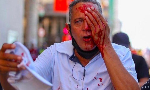 'Foram vários disparos, não sabia de onde vinha', diz homem que perdeu visão após ação violenta da PM em protesto no Recife