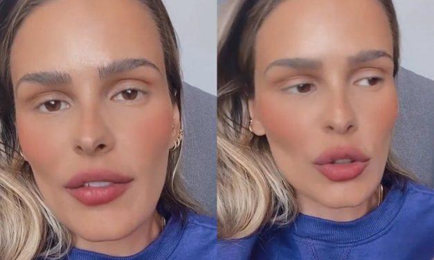 "Yasmin Brunet desabafa após ser criticada nas redes sociais e reclama de negatividade: ""Ódio gratuito"""
