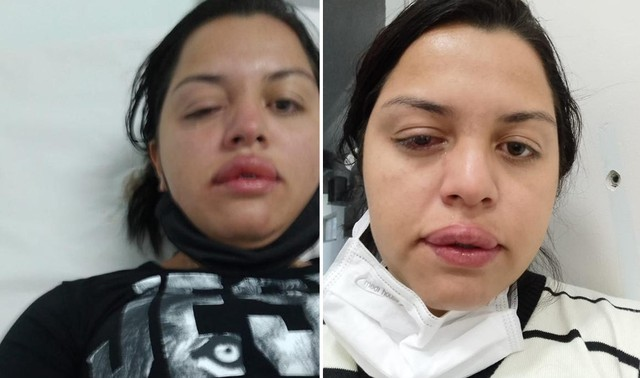 Faxineira atacada pelo ex-patrão com ácido teme perder visão de um olho: 'Não consigo enxergar'